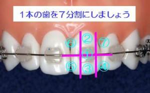 矯正治療中の歯磨き方法